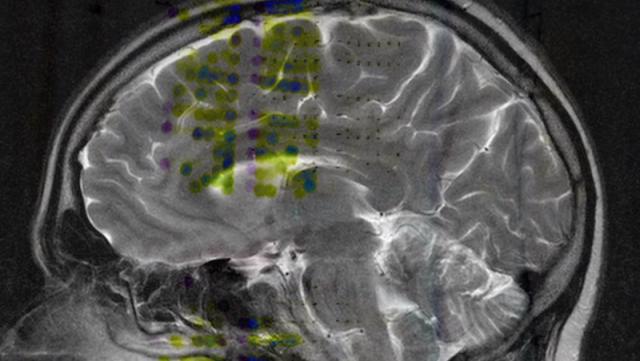 Schermata 2014 06 19 alle 15.01.37 640x361 HUMAN BRAIN PROJECT   simulare il cervello umano