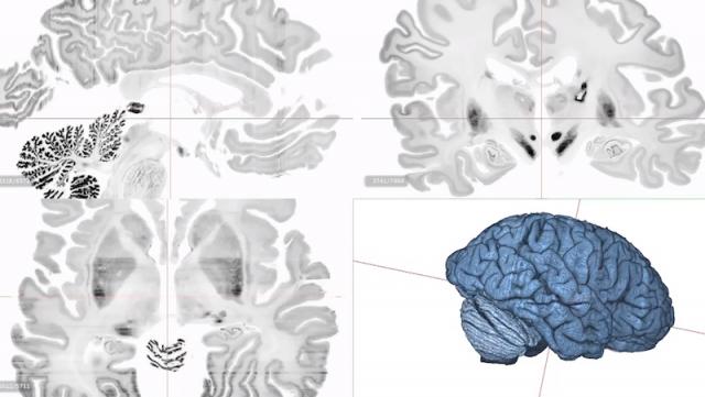 Schermata 2014 06 19 alle 15.03.34 640x361 HUMAN BRAIN PROJECT   simulare il cervello umano